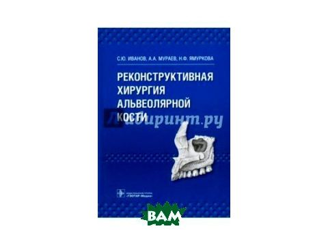 Реконструктивная хирургия альвеолярной кости Киев