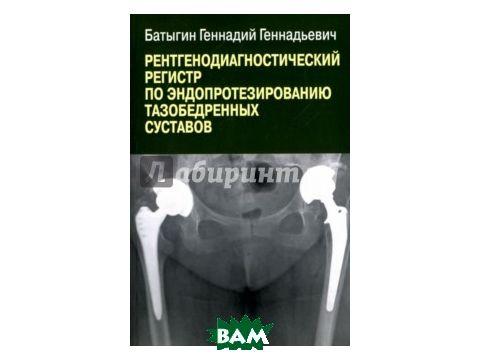 Рентгенологический регистр по эндопротезированию тазобедренных суставов Киев