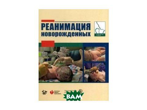 Реанимация новорожденных Киев