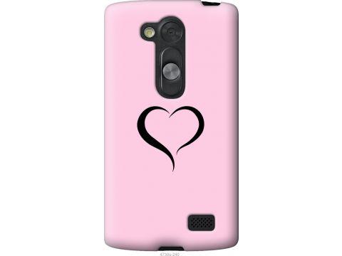 Чехол на LG L Fino D295 Сердце 1 (4730u-240-22700)