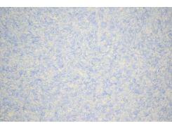 Жидкие обои Оптима 057 синий с белым